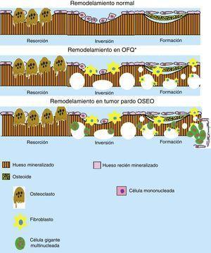 Esquema del remodelamiento óseo en la osteítis fibrosa quística (OFQ) y en la formación del tumor pardo. Se puede apreciar que durante el remodelamiento óseo en OFQ existe gran actividad osteoclástica dando aspecto quístico del hueso, la pérdida mineral ósea trae consigo la activación de los fibroblastos que crean fibrosis en los lugares de pérdida ósea. En cambio en la formación de tumor pardo se añade la presencia de células multinucleadas gigantes y los fibroblastos que crean la apariencia de un seudotumor óseo. (Elaborado por: Juan Miguel Alemán I. Tomado de: Rosenberg et al.4).