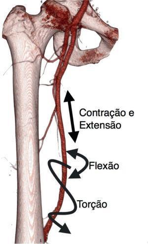 Forças resultantes da flexão do joelho na artériafemoral superficial.