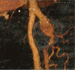 Three-dimensional computed tomography scan reconstruction showing the 6cm diameter left bilateral profunda femoris artery aneurysm.