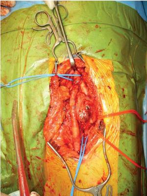 Left bilateral profunda femoris artery aneurysm exposed through a longitudinal groin incision. Inflow and outflow vessels are encircled with blue tape and the femoral nerve with red tape.
