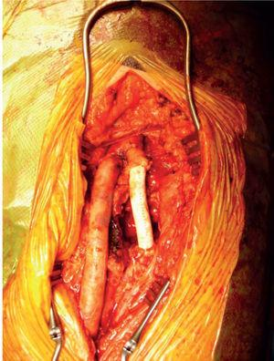 Open aneurysmectomy and polytetrafl uoroethylene (PTFE) graft interposition.