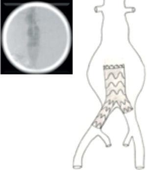 Libertação da endoprótese bifurcada recuando-a até à bifurcação aórtica.