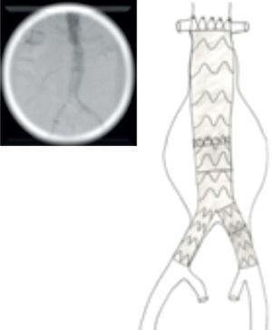 Extensão do ramo contra-lateral e angiografia final com exclusão do aneurisma.