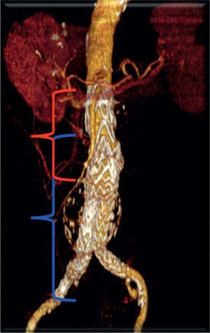 Angio-TC realizado ao 1° mês de pós-operatório confirmando exclusão total do aneurisma.