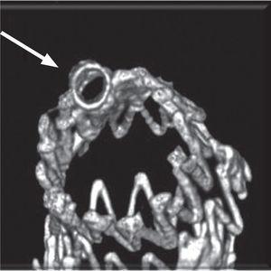 Angio-TC realizado ao 1° mês constatando-se exclusão do aneurisma, permeabilidade do sent carotídeo (seta branca) e embolização da ASE (seta verde).