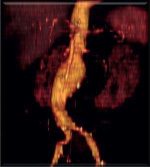 Angio-TC pré-operatório observando-se aneurisma justa-renal.