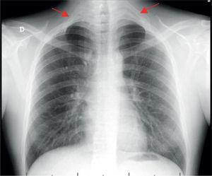 Radiografia de tórax: costela cervical bilateral, completas, com articulação com a 1ª costela (setas vermelhas).