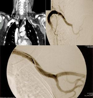 Case 1. Top left: CTA showing distal extension of dissection to the axillary artery and occlusion of the brachial artery. Top right: Intraoperative selective digitally subtracted arteriography confirming CTA findings, diagnostic catheter placed distally to proximal dissection entry flap. Bottom: Completion arteriography.