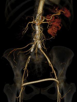 Angio‐TC pós‐operatória.