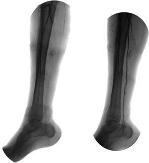 Angiografia antes e após angioplastia da artéria tibial posterior com balão.