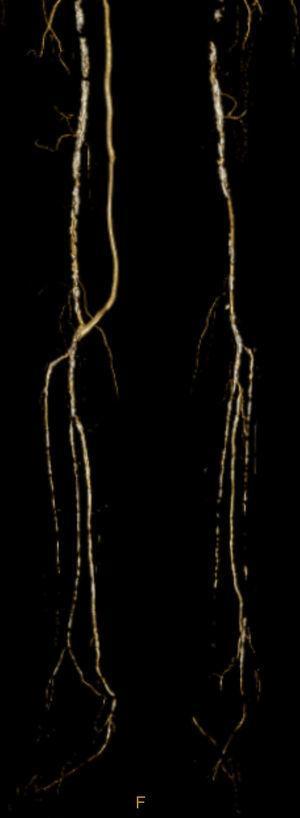 Angio‐TC demonstrando permeabilidade da artéria tibial posterior.