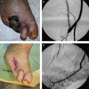 1 – Aspeto do pé antes do bypass ultradistal. 2 – Imagem angiográfica da anastomose proximal do bypass. 3 – Aspeto do pé 2 meses e meio após a cirurgia. 4 – Controlo angiográfico da anastomose distal do bypass à artéria plantar externa.