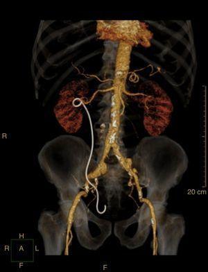 Reconstrução 3D angio‐TC e seus ramos com stent uretérico temporário colocado no ureter direito. Este exame confirmou a ausência de coleções em torno do ureter.