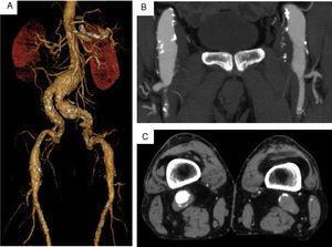 Estudo por angioTC pré‐operatória mostrando doença multianeurismática aorto‐ilíaca, femoral e poplítea bilateral.