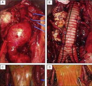Aspetos intraoperatórios do procedimento de reconstrução proximal realizado, evidenciando a particularidade anatómica de múltiplas artérias renais acessórias.