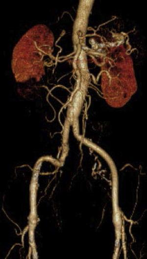 Estudo por angioTC que mostra a revascularização proximal, permeável e sem complicações associadas.
