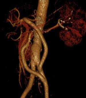 Angio‐TC de controlo aos 3 meses.