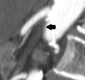 Trombo oclusivo no segmento proximal da artéria mesentérica superior.