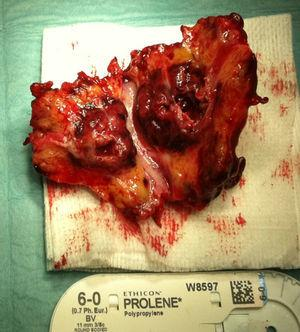 Mycotic aneurysm of the superior mesenteric artery, showing a dysmorphic structure and an important inflammatory process of the surrounding peri-aneurysmal fat tissue.