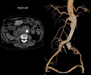 Post-operative CT scan: endovascular successful AAA exclusion, with patent ilio-renal (arrow) and femoral crossover bypasses.