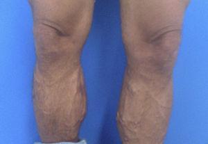 Estigmas periféricos de insuficiência venosa crónica secundária a síndrome pós‐trombótica.