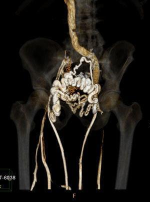 Reconstrução tridimensional da VenoTC. Oclusão da veia ilíaca direita com trombose até à confluência femoro‐profunda, escassamente recanalizada.