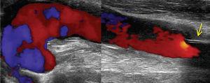Falso aneurisma axilar, migração distal protésica (seta) e fluxo no canal do prévio trajecto de bypass