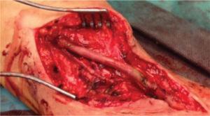 Ressecção de aneurisma e interposição de veia safena interna invertida em posição úmero-umeral.