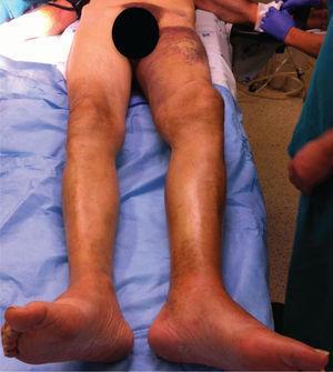 Sufusão hemorrágica da coxa, extenso hematoma popliteu e pé pendente.