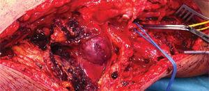 Abordagem por via interna da artéria popliteia supra e infra-genicular.