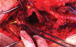 Endoaneurismorrafia proximal (seta longa) e distal (seta curta) na artéria popliteia supra-genicular.