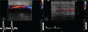 """Estudo por """"eco-Doppler"""" aos 3 meses de """"follow up"""" mostrando a permeabilidade do """"bypass"""" com fluxo trifásico de boa amplitude que se mantém até ao terço médio da artéria tibial anterior."""