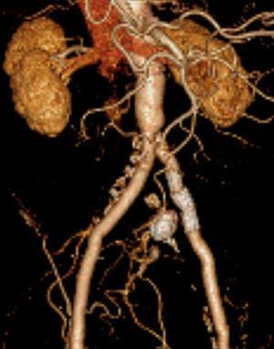 AngioTC de controlo, realizada 2 anos após o procedimento, que confirmou a exclusão do aneurisma hipogástrico esquerdo e a permeabilidade da endoprótese.