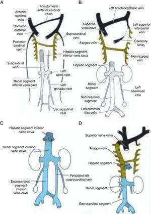 Desenvolvimento da veia cava inferior, veia ázigos e veia cava superior. A. Sétima semana. Relações anatómicas entre as veias subcardinais, supracardinais, sacrocardinais e cardinais anteriores. B. O sistema venoso no nascimento – os 3 componentes da veia cava inferior. C. Duplicação da veia cava inferior a nível lombar devido à persistência da veia sacrocardinal esquerda. D. Ausência da veia cava inferior. A metade inferior do corpo é drenada pela veia ázigos, que conflui para a veia cava superior.