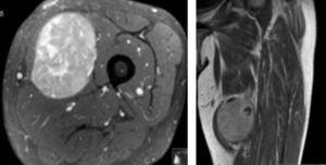 Imagens demonstrativas da RMN realizada pré‐operatoriamente. À esquerda um corte transversal com visualização do tumor e suas relações muscular. À direita uma perspetiva coronal.