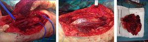 Imagens representativas do procedimento cirúrgico. Em cima: o aspeto tumoral intraoperatoriamente e sua relação com o feixe vasculonervoso femoral devidamente identificado. No meio: a visualização do aspeto final após reconstrução da artéria e veia femoral superficial com veia grande safena contralateral. Em baixo: aspeto macroscópico da peça operatória.