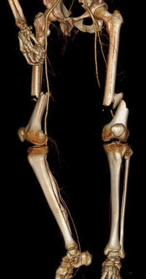 Fratura diafisária de ambos os fémures com oclusão da artéria femoral esquerda (vista anterior).