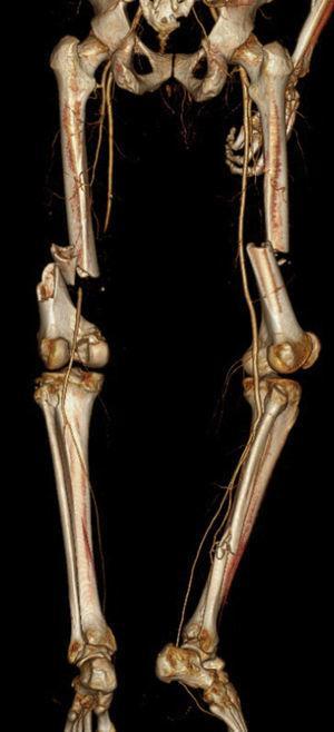 Fratura diafisária de ambos os fémures com oclusão da artéria femoral superficial esquerda (vista posterior).