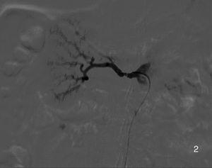 Cateterização seletiva da artéria renal direita.