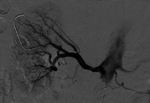Pós‐angioplastia da artéria renal direita.