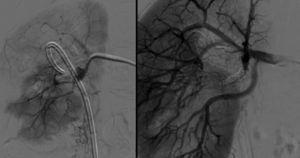 Doente 3, angiografia antes e após embolização de FA em ramo da artéria renal direita.