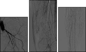 Angiografia após oclusão de bypass. Observa‐se ausência de fluxo no setor femoropoplíteo, com repermeabilização da artéria tibial posterior e peroneal.