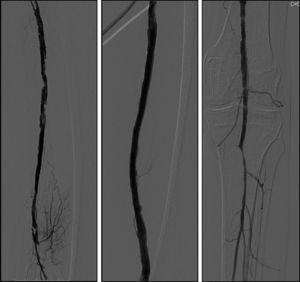 Angiografia após recanalização subintimal e implante do stent Supera®.