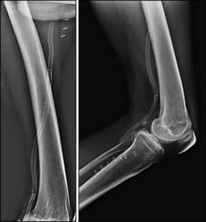 Estudo radiográfico após implante do stent Supera® em extensão do membro e flexão do joelho.