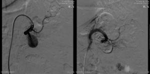 Tratamento endovascular do aneurisma da artéria esplénica.