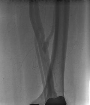 Preenchimento da veia femoral por contraste na arteriografia de subtração digital.