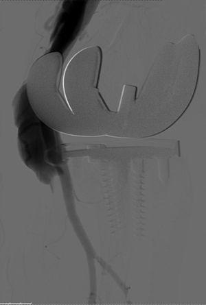 Preenchimento da veia poplítea esquerda por contraste e ectasia da mesma na arteriografia de subtração digital.