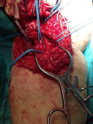 Veia e artéria poplíteas e evidência de fístula arteriovenosa.