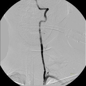 Angiografia de subtração digital, já após colocação de ambos os stents cobertos, em que se verifica ausência de hemorragias e restituição anatómica da vascularização cerebral posterior.