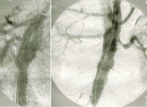 Arteriografia de controlo pós‐colocação de endoprótese tubular cónica, visualizando‐se preenchimento retrógrado do falso lúmen.